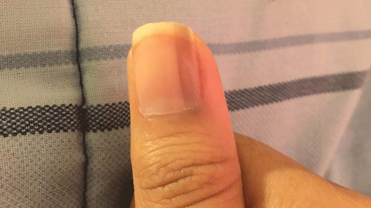 Black Lines on Fingernails
